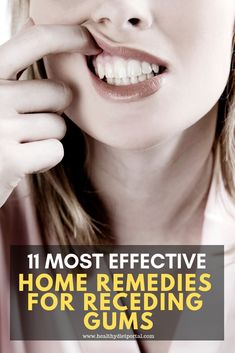 Gum recession is usually associated with poor dental hygiene since gum disease is the most common cause of this condition. Dental Hygiene, Dental Health, Oral Health, Herbal Remedies, Home Remedies, Natural Remedies, Receeding Gums, Gum Inflammation