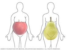Apple and pear body shapes (Mayo Clinic info on Metabolic Syndrome. Pinned 07-16-16 by jfb)