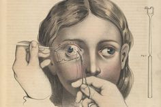 For much of the 19th century, surgery was carried out without anaesthetic.