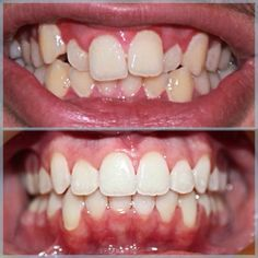 #smilesofsanmarcos #beforeandafter #braces we offer FREE consultations!  call us 760)480-1750