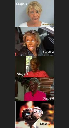this lady is the reason I don't go tanning. When I'm in my 40's I'm still going to have skin like I have now..