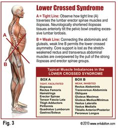 Lower cross syndrome: muscle imbalances that exacerbate lower back pain