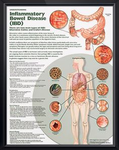 Understanding Inflammatory Bowel Disease anatomy poster shows Crohn's disease and ulcerative colitis and provides potential IBD complications. Gastroenterology chart for doctors and nurses.