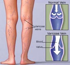 Natural Remedies Varicose Veins Home Remedies for Varicose Veins - Here are the top 14 natural treatments for varicose veins – many of them are absolutely free and can be incredibly effective. Natural Health Remedies, Natural Cures, Herbal Remedies, Varicose Vein Remedy, Varicose Veins Treatment, Aorta Abdominal, Health And Beauty Tips, Health Advice, Women's Health