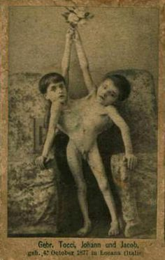 Sideshow Conjoined Twins