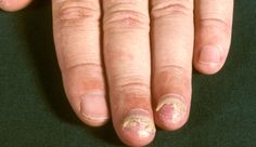 Nail abnormalities - NHS Choices