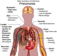 walking pneumonia symptoms in adults | worse, seems and remedies., Human Body