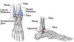 Ankle Fractures (Broken Ankle)-OrthoInfo - AAOS