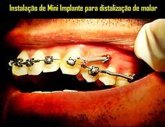 Instalação de Mini Implante para distalização de molar   Odonto-TV