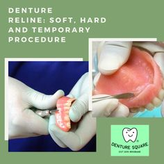 Having looseness in #denture, no suction, or any discomfort then just book a relining services appointment to get comfort on your existing #dentures. Visit now! #dentallaboratory #odontology #dent #tooth #dentalclinic #teeth #denturereline Dental Group, Dental Laboratory, Appointments, Tooth, Personal Care, Self Care, Personal Hygiene, Teeth, Dental