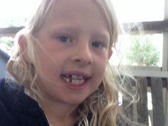 Jag har tappat en tand i dag