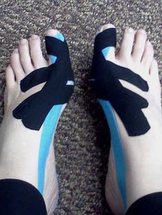 Fitness Workouts, Bunion Remedies, K Tape, Knee Pain Exercises, Roller Derby Girls, Kinesiology Taping, Medical Anatomy, Athletic Training, Alternative Health