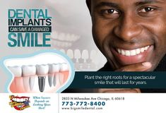 Dental Implants Chicago Area: By calling patients in the Chicago area can connect with Dr. Dean Dietrich of Pleasant Dental to learn about solutions like dental implants. Tooth Extraction Aftercare, Tooth Extraction Healing, Dentist Day, Dentist Near Me, Implant Dentistry, Cosmetic Dentistry, Teeth Implants, Dental Implants, Dental Hygienist