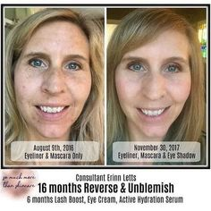 Patience is key when it comes to changing & healing your skin. Consistent use of the right products is the secret that isn't really a secret.  Ready to have the best skin of your life? Click through for more info!  #rodanandfields #skincare #melasma (scheduled via http://www.tailwindapp.com?utm_source=pinterest&utm_medium=twpin)