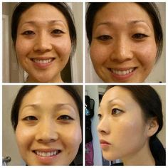 """WOW! Check out these results!  Don't they blow you away! It has R+F Consultant Izzy who said ~ """"This my personal before + after 60 days of REDEFINE Regimen and Multifunction Eye cream. Took this pic this morning. It's very much like seeing your kids grow before your eyes...don't realize the change until u actually see pictures! I promise this is not touched up and no filter or makeup...I'm blown away!"""""""