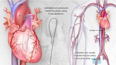Cardiac Catheterization (cardiac cath) is a procedure that examines the inside of your heart's blood vessels using special X-rays called angiograms. Dye visible by X-ray is injected into blood vessels using a thin hollow tube called a catheter. From the American Heart Association.