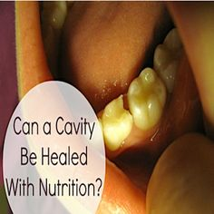 how to naturally fix a cavity