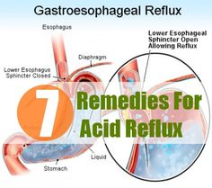 7 Herbal Remedies For Acid Reflux