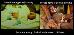 Human rights for all.  We must end all routine circumcision.