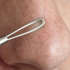 How to Remove Blackheads With Rubbing Alcohol & Baking Soda