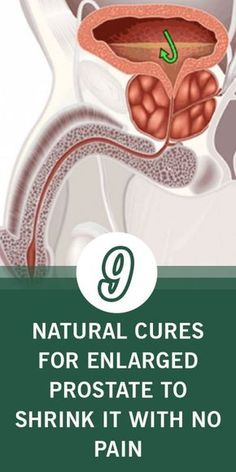 9 Natural Cures For Enlarged Prostate To Shrink It With No Pain - Health Experts bbc Natural Home Remedies, Herbal Remedies, Health Remedies, Natural Healing, Natural Antibiotics, Reproductive System, National Institutes Of Health, Get Healthy, Healthy Life