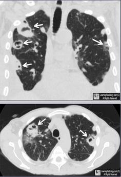 Septic Emboli. Upper photo. Coronal-reformatted CT of the chest shows multiple peripheral masses, most with cavitation (white arrows). Lower photo: Axial CT of chest demonstrates thin-walled upper lobe cavities (white arrows). The patient was an intravenous drug user who was shown to have tricuspid vegetations by echo.