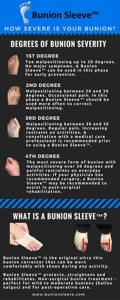 How severe is your #bunion?