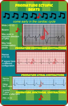 Premature Ectopic Beats More EKG Infographics How to Differentiate Heart Blocks Atrial Fib Junctional Rhythms PJCs Cardiac Nursing, Nursing Mnemonics, Nursing Career, Nursing Assessment, Ob Nursing, Pediatric Registered Nurse, Cardiac Cycle, Ekg Interpretation, Radiology Student