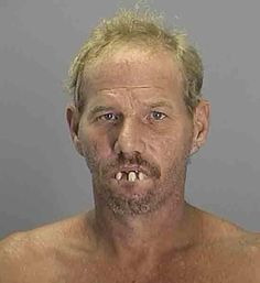 """Say cheese! On second thought, say, """"I promise to go to the dentist when I make bail."""""""