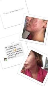 180 Anti Ageing System Chemical Peel, Even Skin Tone, Younger Looking Skin, Anti Aging, Facial, Nu Skin, Skin Care, Ageing, Range