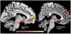 Neurofeedback para aumentar la capacidad de empatía.