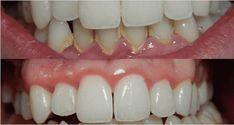Протрите зубы и десна этими двумя маслами, и Вам больше не придется идти к стоматологу! Эфирные масла являются главным ингредиен...