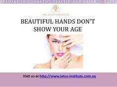 IPL Laser Treatment For The Back Of The Hands by TheLotusInstitute via slideshare http://lotus-institute.com.au/laser-skin-rejuvenation
