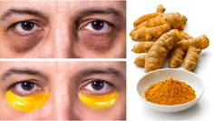 Cheap Yet Proven Natural Remedies to Eliminate Dark Circles - Remedy You Dark Circles Around Eyes, Natural Bleach, Dark Circle Remedies, Pele Natural, Face Exercises, Dark Eyes, Aloe Vera Gel, Facon, Vitamin E
