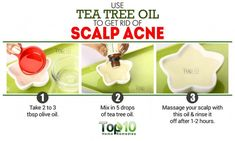Watch This Video Beauteous Finished Cystic Acne Home Remedies that Really Work Ideas. Divine Cystic Acne Home Remedies that Really Work Ideas. Natural Acne Treatment, Natural Acne Remedies, Spot Treatment, Natural Cures, Oily Skin Remedy, Beauty Care, Face Beauty, Beauty Tips, Beauty Secrets