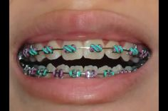 Colorful and I am going to get these when I go to get my wires and rubber bands changed!!