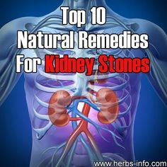 1. Increase Your Hydration – This is by far the best natural remedy for any type of kidney stones you have. People diagnosed with kidney stones should be consuming a minimum of 10 glasses of fluids on a daily basis. People who are at risk of developing cystine stones should drink more fluids, at least 14 glasses every day.
