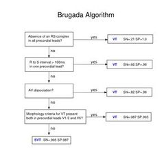 Brugada algorithm.svg
