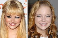 Emma Stone Nose Job Before And After Photos Emma Stone Plastic Surgery Plastic Surgery Before After, Emma Stone, Feature Film, American Actress, Actresses, Photos, Female Actresses, Pictures