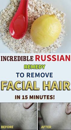 Russian remedy for facial hair removal