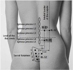 Needle insertion points for lumbar discogenic lesions (BL-23, BL- 25, BL-52, and BL-32).