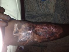 """""""Henry,"""" a Nigerian Christian boy abducted by Boko Haram, shows off his irreparable leg injury.FACE TO FACE with boko haram Escapee: A Christian Boy tells His story 1-30-15"""
