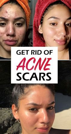 Scar Remedies, Home Remedies For Acne, Red Face Remedies, Skin Care Home Remedies, Pimple Scars, Natural Hair Mask, Acne Scar Removal, Acne Spots, Remove Acne