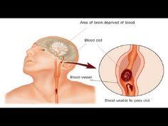 Identifique os sinais que antecedem um acidente vascular cerebral