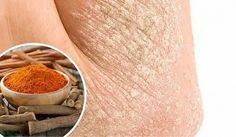 Псориаз - это патология кожи, которая вызывает покраснение, шелушение, воспаление, боль и жжение. Мы расскажем, как с ним бороться.