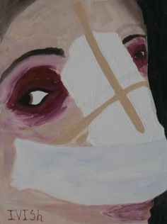 Buy 2 day after rhinoplasty, a Acrylic on Canvas by Tanya Koryagina from Russia. It portrays: Body, relevant to: portrait, rhinoplasty, face, gypsum, hospital I am inspired by the metamorphoses taking place with the human body. In my works I try to convey my own feelings, which caused rhinoplasty. It is both a physical inconvenience and a joy from the expectation of a miracle.