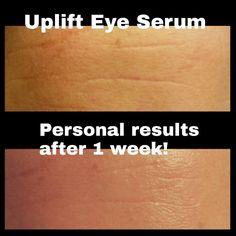 The magic of UPLIFT eye serum Uplift Eye Serum, Younique, Magic, Eyes