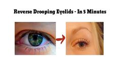 How to reverse drooping eyelids at home - In about 5 minutes. This works like a charm!