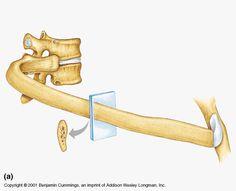 structure of the rib Anatomy Bones, Human Spine, Medical Anatomy, Anatomy And Physiology, Brain, Health Fitness, The Brain, Health And Fitness, Fitness