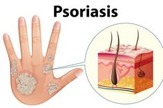Ayurveda is the best psoriasis treatment! It is an ancient medical practice that people sometimes use to try to help their psoriasis. It involves incorporating a special diet, herbal compounds, and additional supportive medical practices. Psoriasis Symptoms, Psoriasis Skin, Psoriasis Cream, Psoriasis Remedies, What Is Psoriasis, Vase, Back Pain, Health